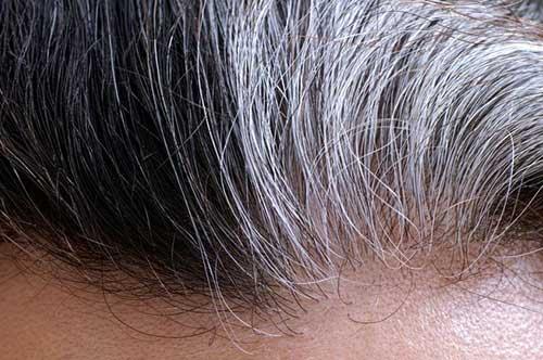 combate cabelos branco