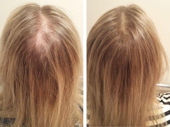 queda cabelo feminino tratamento